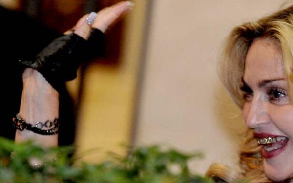 Madonna adere à moda 'bling' e exibe sorriso de pirata (AFP Photo/Tiziana Fabi)